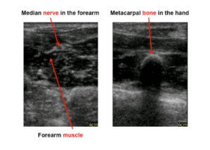 Ultrasound demonstration picture, showing the median nerve in the forearm, a forearm muscle, and a metacarpal bone in a hand.