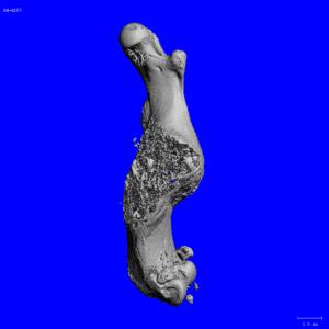 scan of a femur bone