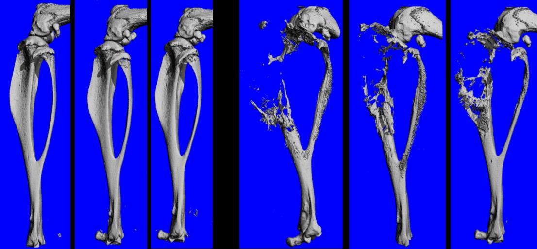 CT images of tibias