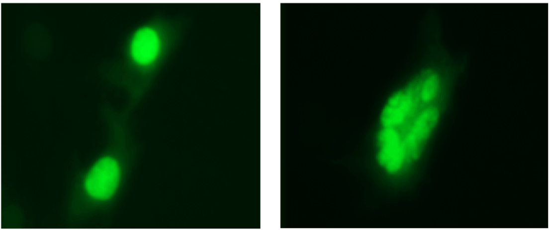 Comparison image of healthy and apoptotic osteocytes